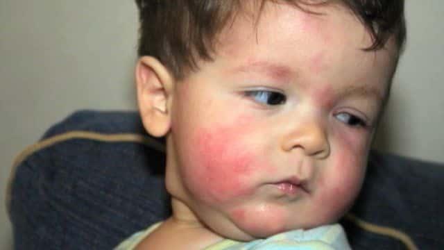 аллергия на мед у ребенка