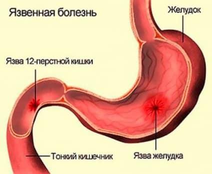 язва желудка и язва двенадцатиперстной кишки