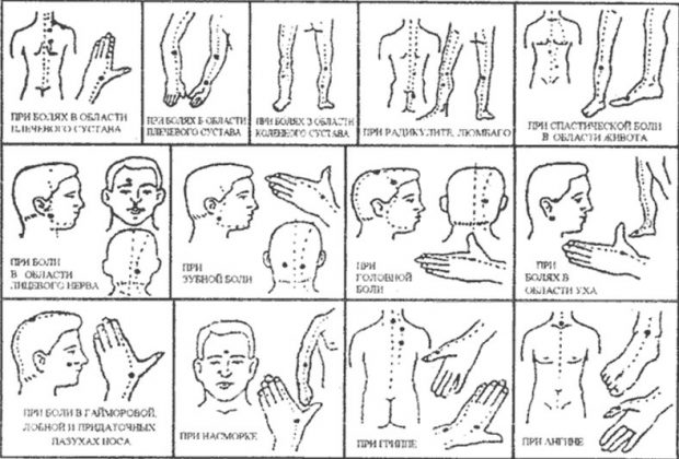 точки ужаливания в зависимости от заболевания